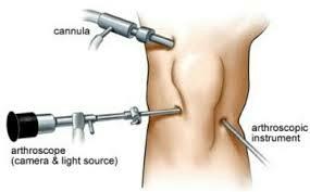 Cara menyembuhkan sendi lutut