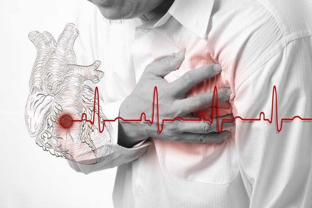 Диета для людей перенесших инфаркт