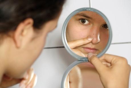 Masker Sperma Obat Jerawat Yang Manjur Dan Ampuh Kompasiana Com
